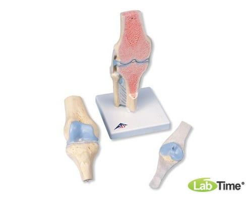 Модель коленного сустава в разрезе