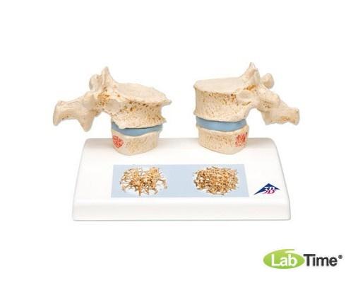 Модель остеопороза
