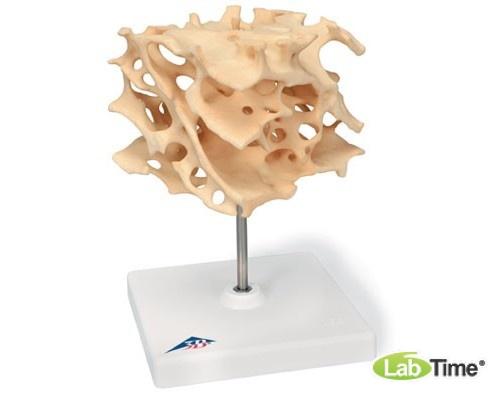 Модель губчатой кости