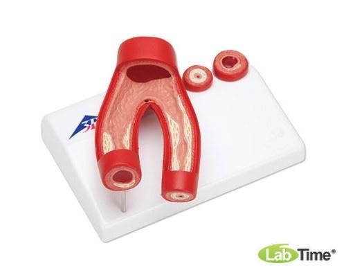 Модель артериосклероза, с поперечным сечением артерии, 2 части