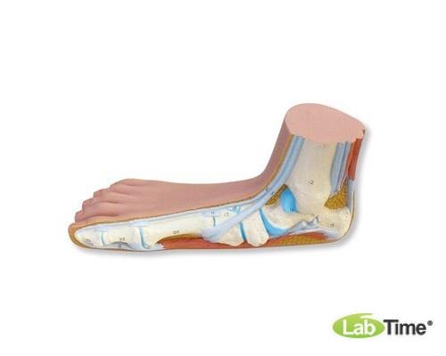 Модель плоской стопы